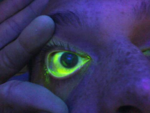 clay-eye.jpg