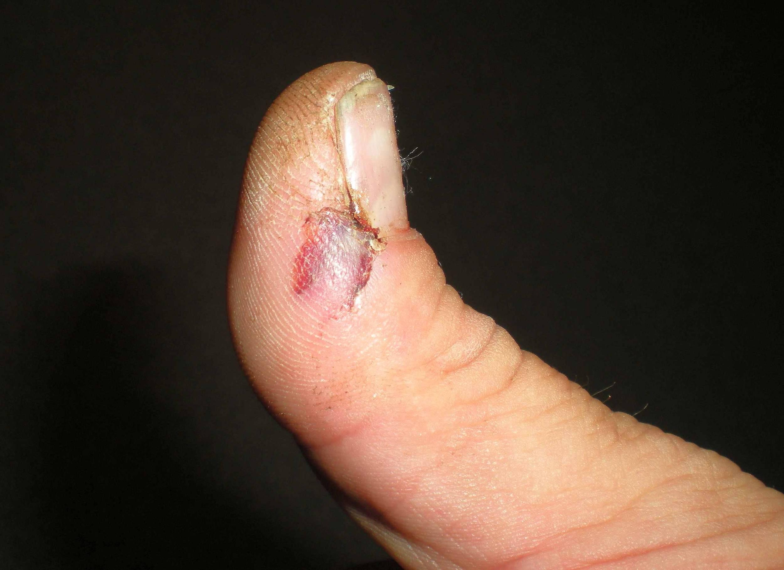 Smashed_thumb.jpg